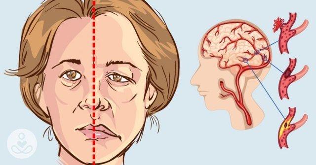 blood clot in the brain