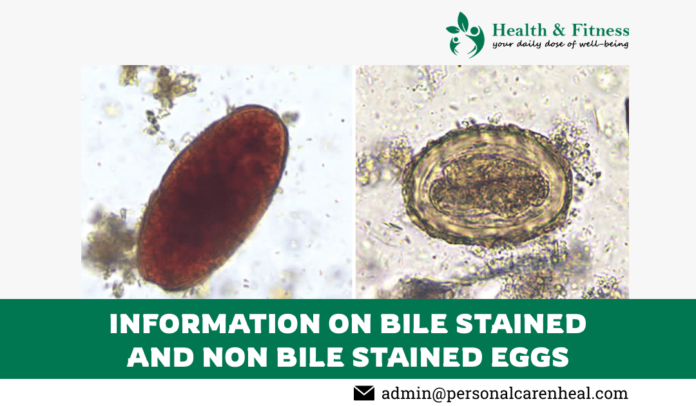 Bile Stained and Non Bile Stained Eggs